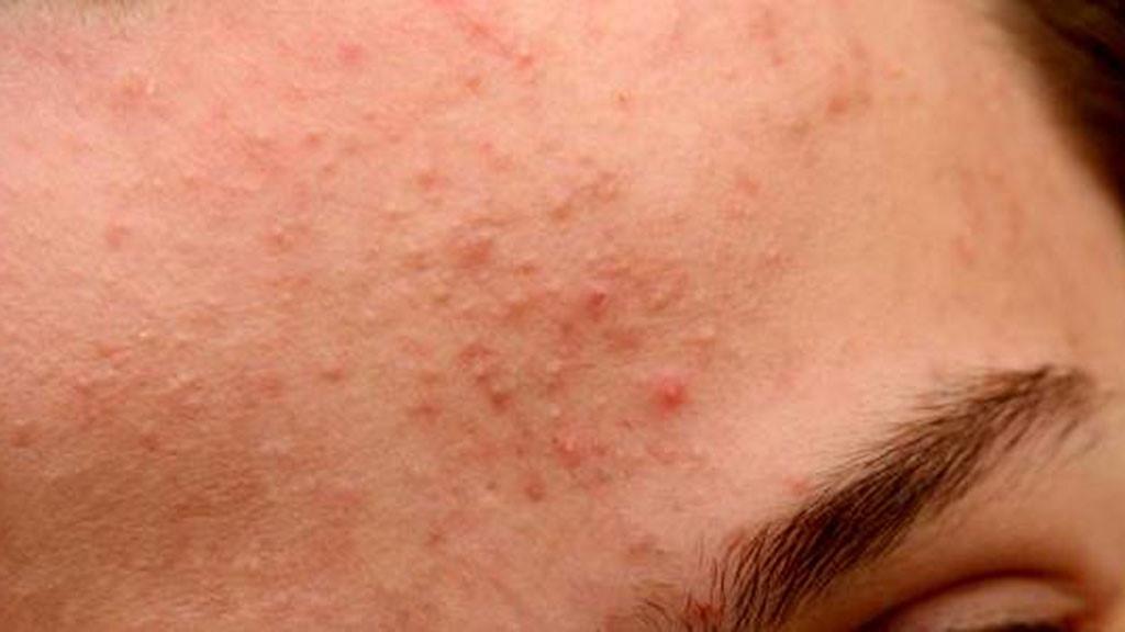 Nguyên nhân và cách phòng ngừa mụn ẩn ở dưới da