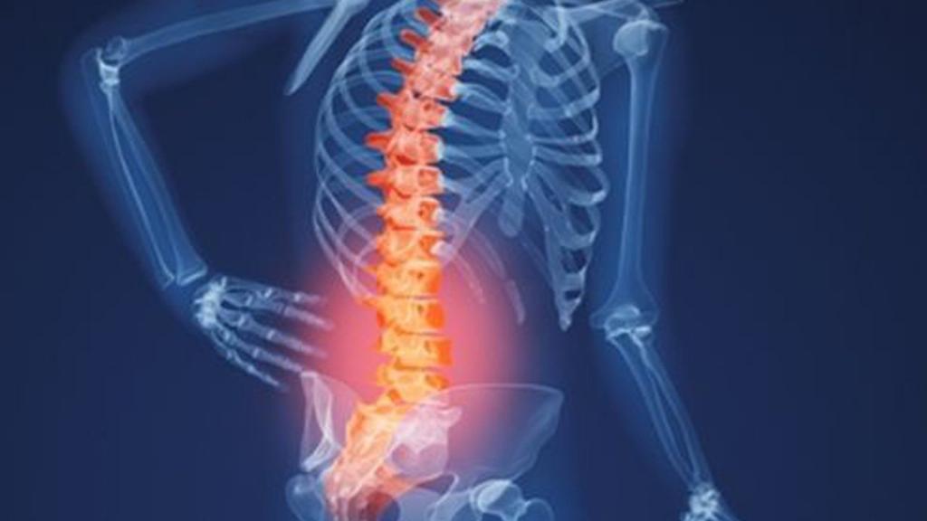 Đau lưng dưới do vấn đề về xương