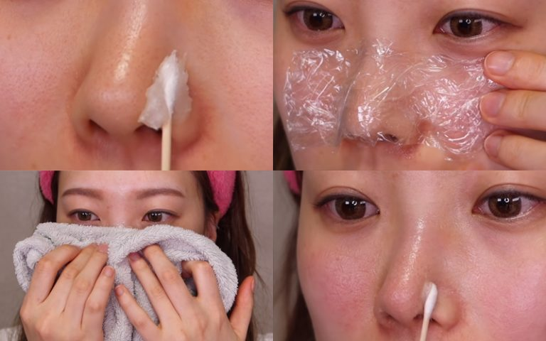 Cách trị mụn đầu đen ở mũi bằng vaseline và dầu tẩy trang