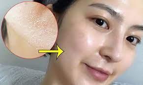 Peel da mặt là gì? Những điều cần phải biết về peel da
