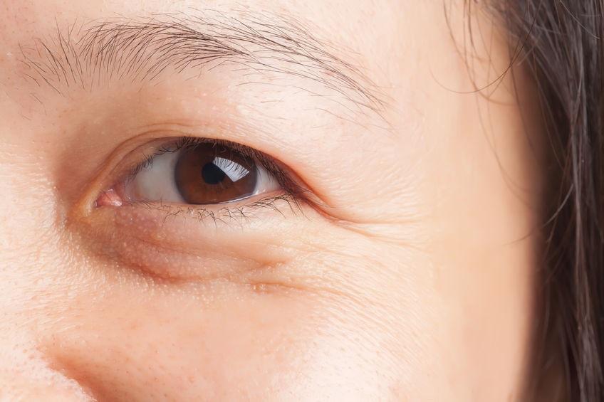 Nguyên nhân và cách ngăn ngừa nếp nhăn dưới mắt hiệu quả