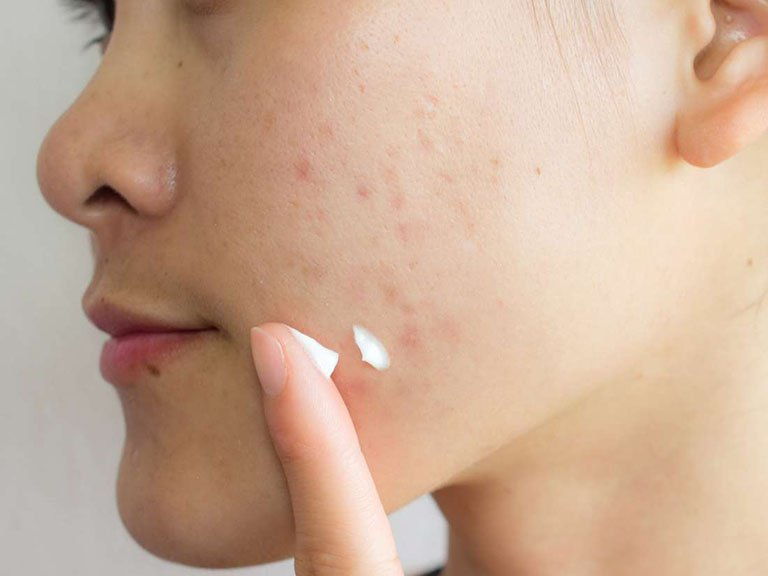 Top 4 phương pháp trị sẹo rỗ lâu năm đơn giản, hiệu quả nhất