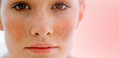 Rối loạn tăng sắc tố da xảy ra ở từng mảng da, làm cho da có màu sẫm hơn bình thường. Các vị trí hay tiếp xúc với ánh nắng mặt trời như mặt, cổ, cánh tay... là các vị trí thường hay bị nám da. Đặc biệt là nám da trên mặt thường đối xứng hai bên.