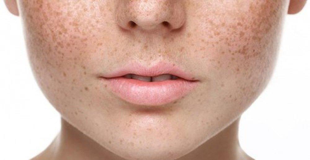 Nguyên nhân gây nám da mặt ở phụ nữ