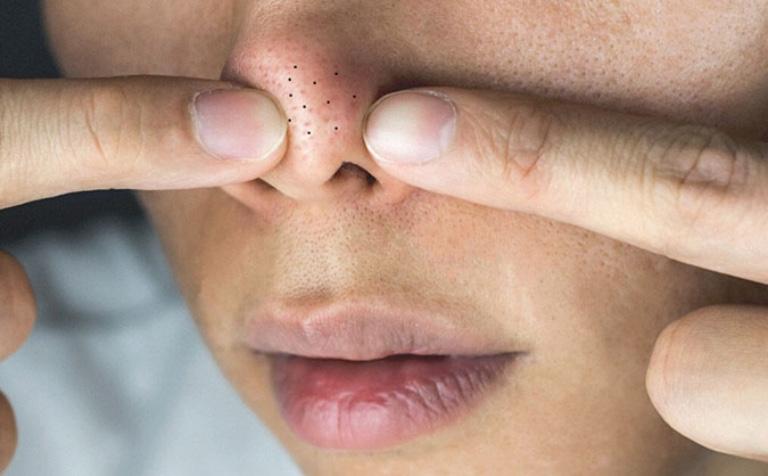 Cách chữa hết mụn đầu đen và nguyên nhân gây mụn đầu đen