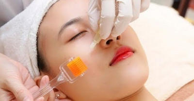 Cách chăm sóc da sau lăn kim đúng cách